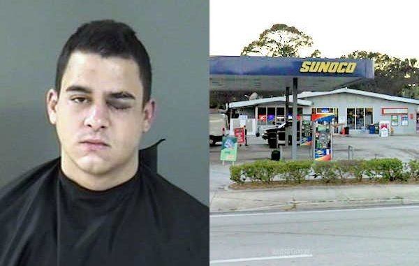 A man who was walking around with a black eye in Vero Beach denies being in a fight.