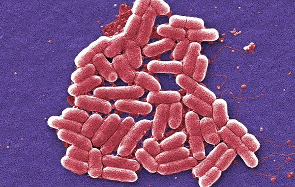 Shigellosis is an infectious disease that can cause fever, diarrhea, and stomach cramps in Indian River County, Florida.